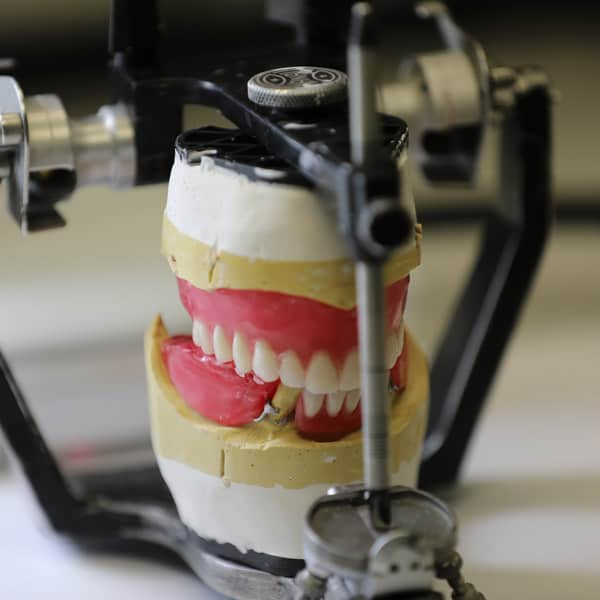 picture of dentures in vice