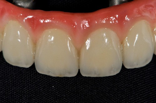 implant denture close-up