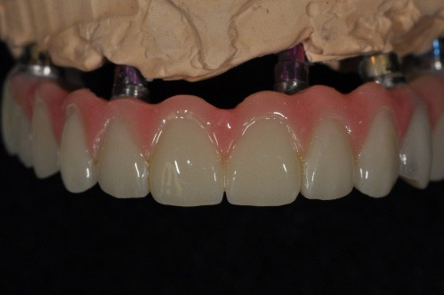 implant dentures in model