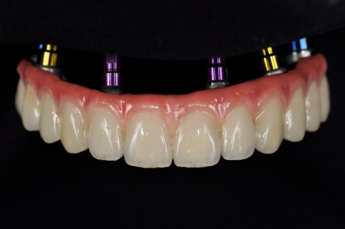 picture of implant dentures