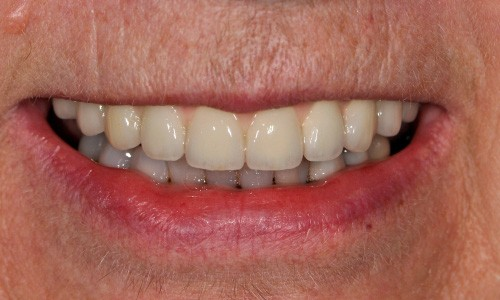 implant dentures in mouth
