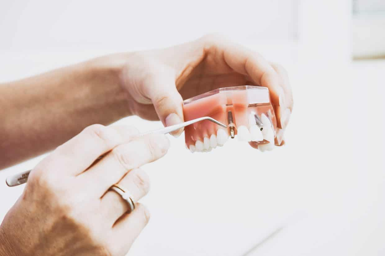 How to Clean and Take Care of Your Dentures
