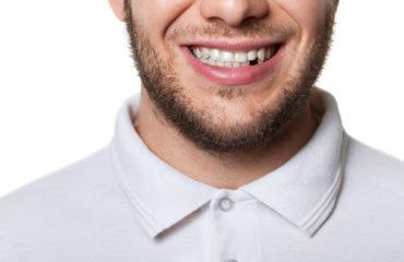 Flipper tooth